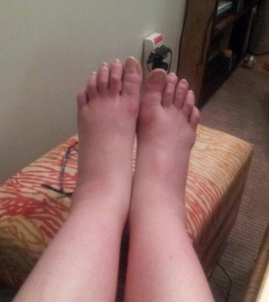 my swollen feet